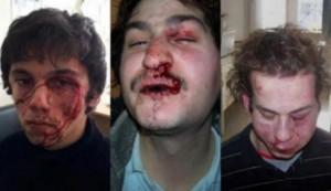 kozani anarchici torturati